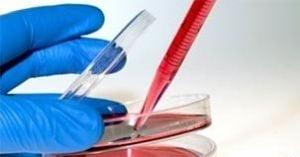 Uretra crescuta in premiera in laborator