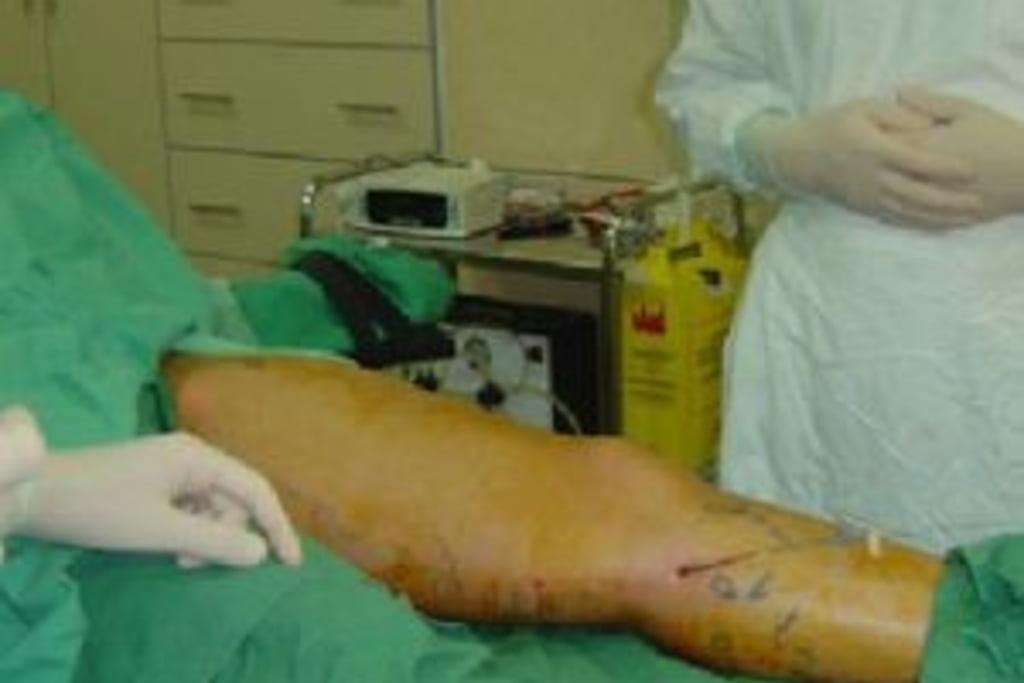 tratamentul varicoz dmitrov stock foto varicoză la tratamentul picioarelor