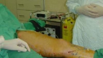 hemoragie varicoză
