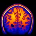 Vom afla cum functioneaza mintea umana? Prima reprezentare digitala a creierului (Video)
