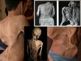 Boala omului de piatra