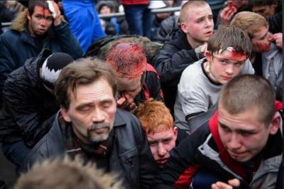 Imaginile cu ranitii din Karkov au inceput sa fie difuzate pe Internet