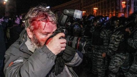 jurnalisti raniti kiev